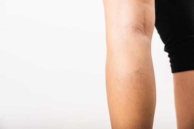 Крупным планом молодая азиатская женщина болезненное варикозное расширение и сосудистые звездочки на ноге