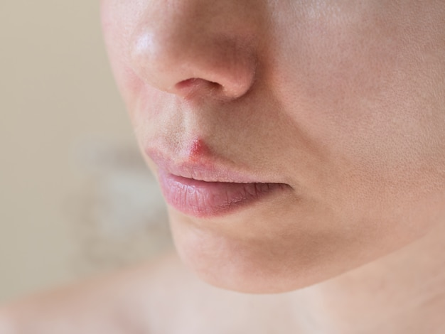 Cold sores. close-up of the female face, selective focus.