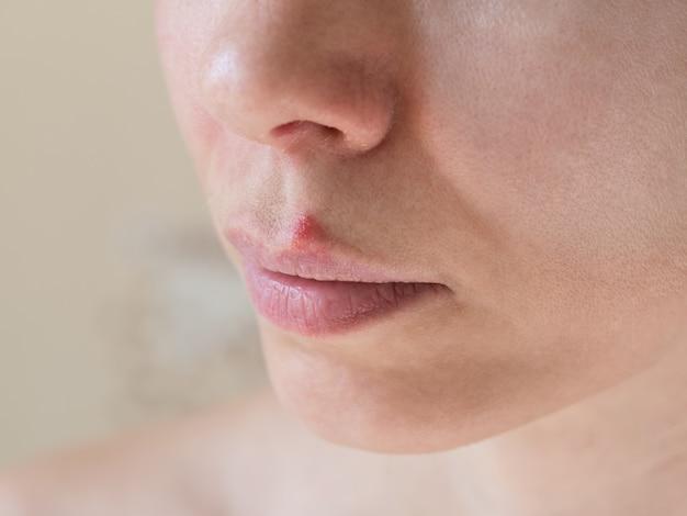 口唇ヘルペス。女性の顔、セレクティブフォーカスのクローズアップ。