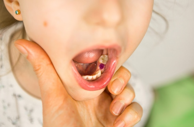 Colored purple filling on the girl's milk chewing tooth. pediatric dentistry, treatment and examination. a child with an open mouth shows a tooth in close-up on a white background.