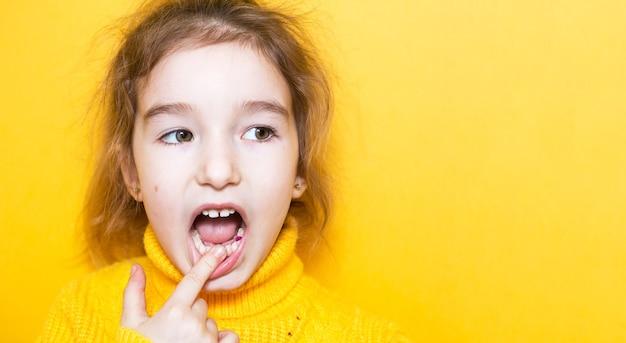 Цветная фиолетовая пломба на молочном зубе девочки. детская стоматология, лечение и обследование. ребенок с открытым ртом показывает крупным планом зуб на желтом фоне.