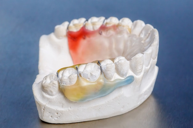 Разноцветные брекеты на модели глиняных зубов