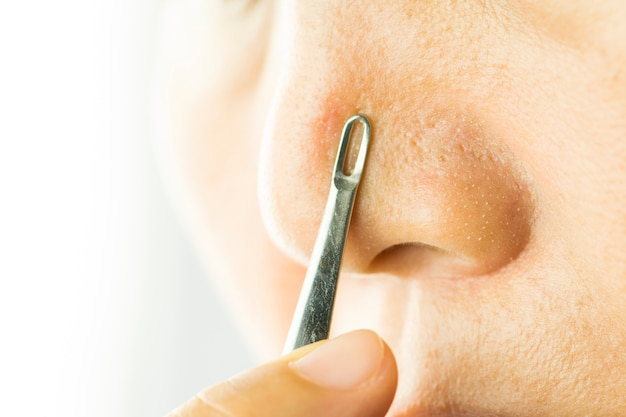 コメドン抽出器で鼻の上の小さなざくろににきび。美と健康のコンセプト。
