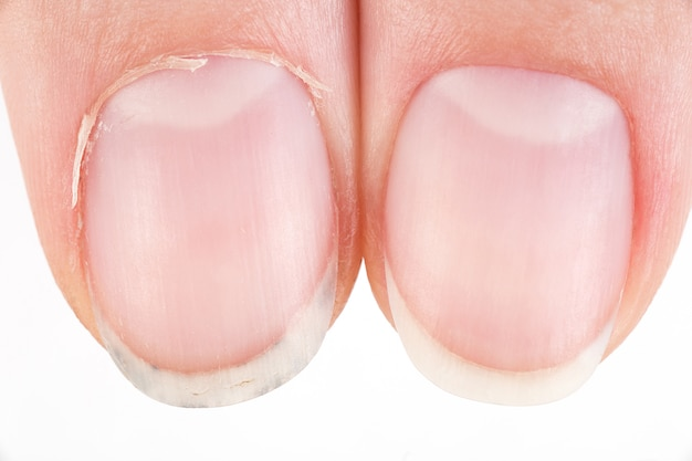 Comparison of the beautiful and the ugly manicure