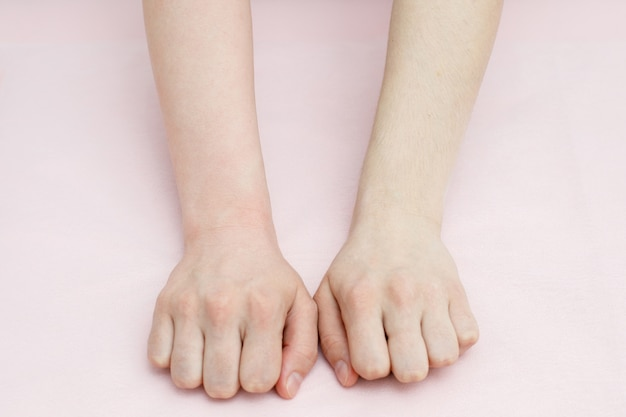 Comparison before and after sugaring depilation on arms