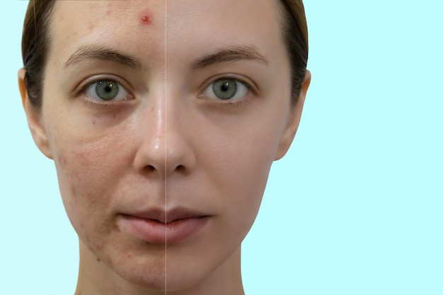 Comparison portrait of a woman with problematic skin without and with makeup.