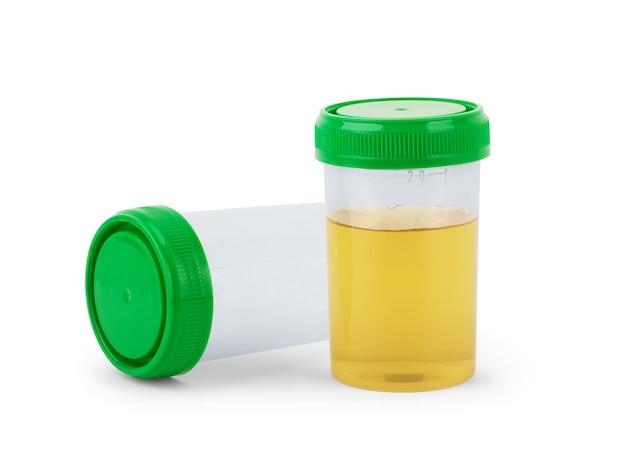 分析用の尿の入った容器。孤立