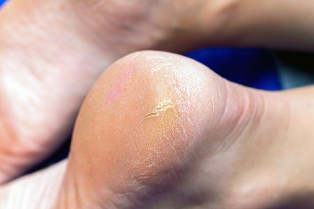 Corn, callus, cracks on a heel foot sole close up.