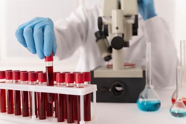 실험실에서 코로나바이러스 혈액 샘플 배열