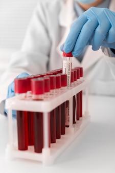 ラボでのコロナウイルス血液サンプルの配置