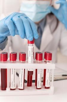 Disposizione dei campioni di sangue del coronavirus in laboratorio