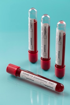 Coronavirus blood samples arrangement in lab