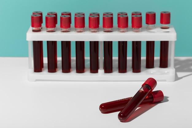실험실에서 코로나바이러스 혈액 샘플 구색