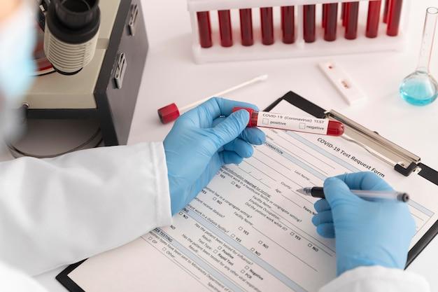 Coronavirus blood samples assortment in lab