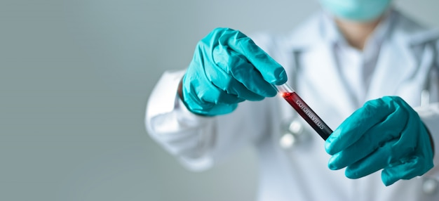 Coronavirus blood test, doctor holding test glass tube with blood for covid-19 analyzing.