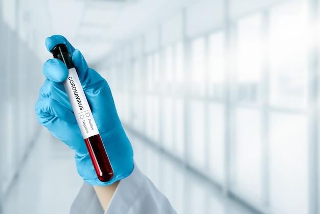 コロナウイルスcovid-19医療検査ワクチンの研究開発コンセプト