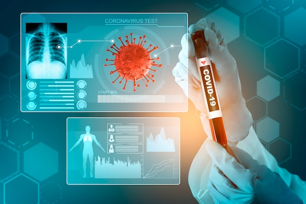 Coronavirus covid-19 medical test vaccine research and development concept