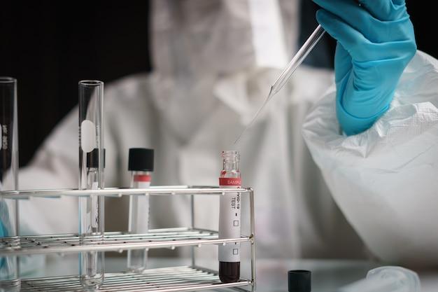 코로나 바이러스 테스트 프로세스, 혈액 검사 샘플에 손으로 튜브 드롭 화학 용액을 담습니다.