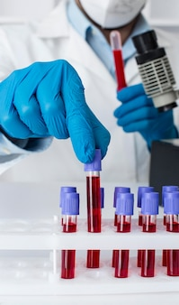 Laboratorio di vaccini contro il coronavirus con campioni