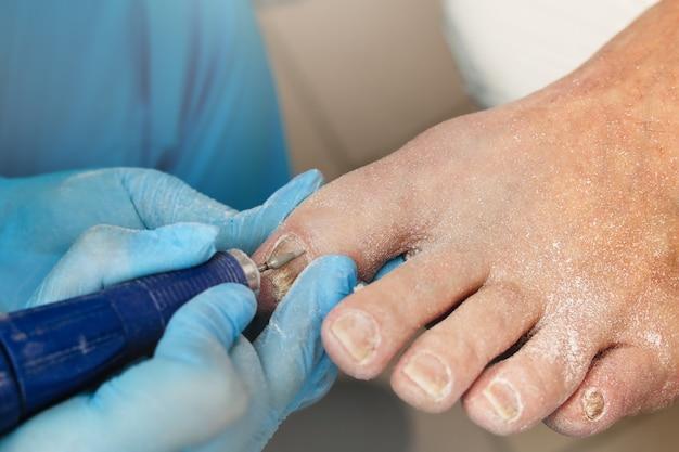 真菌感染後の変形した足指の爪の矯正と治療