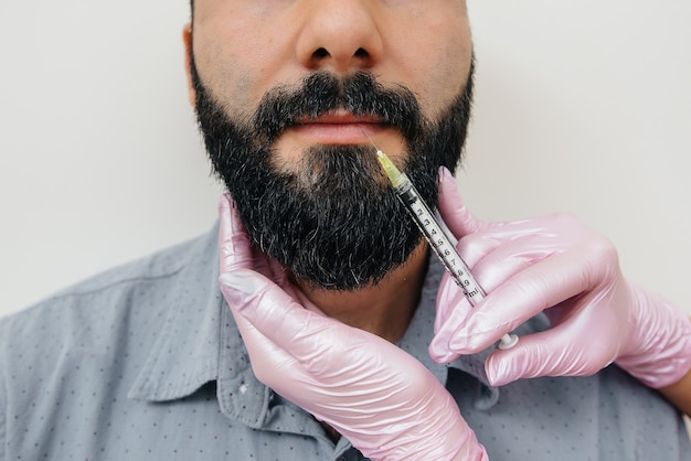 Cosmetic procedure for lip augmentation and wrinkle removal for a bearded man. cosmetology.