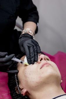 Врач косметолог делает женщине несколько уколов биоревитализации гиалуроновой кислотой