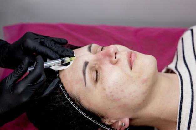 Врач косметолог делает несколько уколов биоревитализации