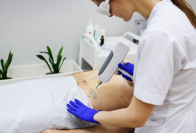 The cosmetologist removes the tattoo on the leg of a young pretty girl with a laser. laser cosmetology