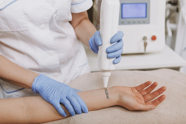 Cosmetologist removing tattoo of a client using laser