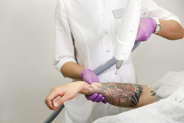 サロンで手から患者とプロの入れ墨除去レーザーと美容師