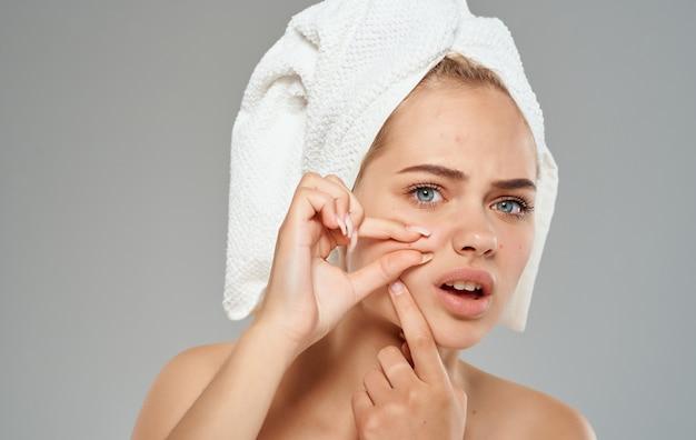 Косметология дерматологии женщина с полотенцем на голове прыщи на лице.