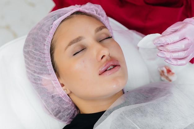 젊은 아름다운 소녀를위한 입술 확대 및 주름 제거를위한 미용 절차. 미용술.