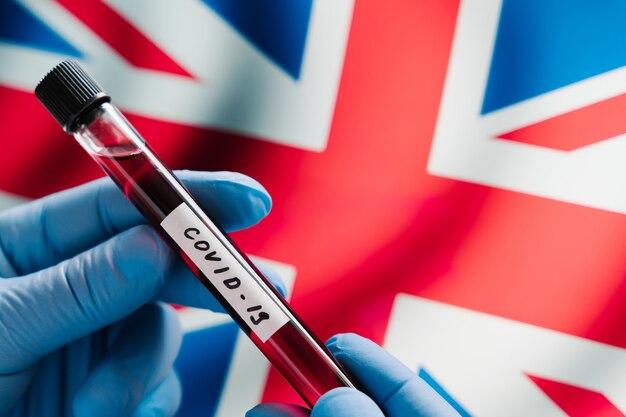 Covid-19 blood test tube against national flag of united kingdom. testing for diagnosis new coronavirus. great britain virus outbreak.