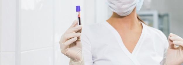 코비드-19, 코로나바이러스, 전염병, 바이러스 개념 - 시험관에 피를 들고 있는 여성이 가까이 있고, 복사 공간이 있는 배경.