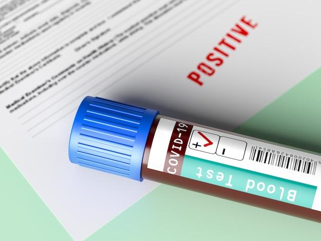 Covid 19 테스트 보고서, 긍정적 인 의료 보고서