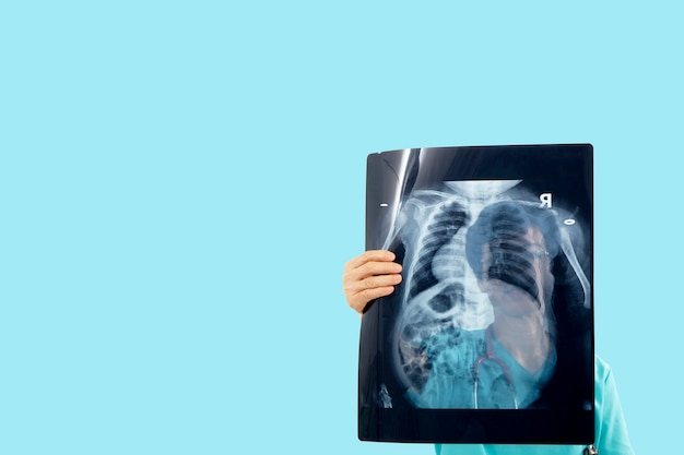 Врач смотрит рентгеновский снимок covid-19