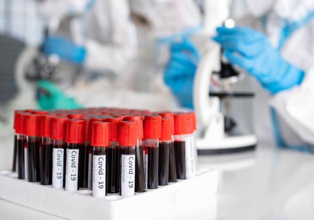 科学者と微生物学者は、covid19の患者から採取した血液の試験管