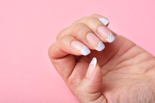 Треснувший сломанный ноготь, слабость ногтей из-за покрытия гель-лаком, гигиена маникюра на ногтях.