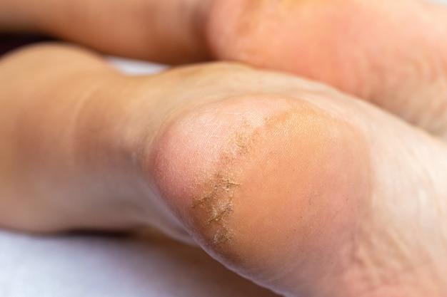 Трещины на пятке у мужчины