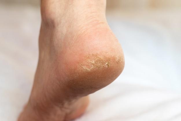 Трещины на пятке. уход за кожей и лечение