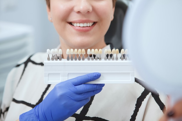 Cropped close up of dentist holding teeth whitening shade guide near patients teeth