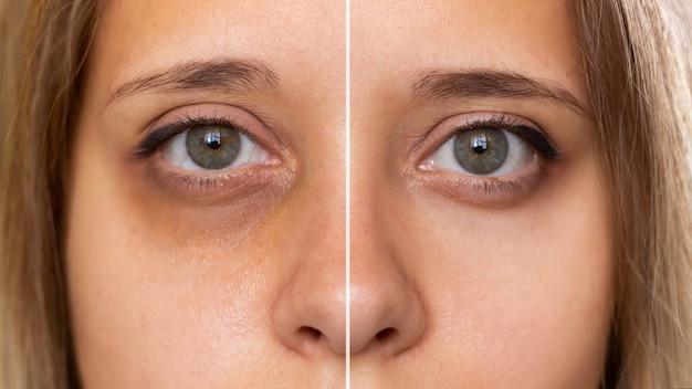 若い女性の顔のクロップドショット治療前の目の下に打撲傷のある女性の緑色の目