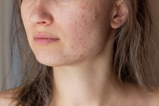 にきびの問題に直面している若い女性のトリミングされたショット頬とあごに赤い傷跡があります