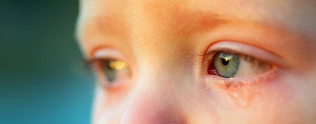 スカイブルーの目で泣く赤ちゃん、クローズアップ。泣いている優しい男の子。恋人っ子の目薬・ティアドロップ。