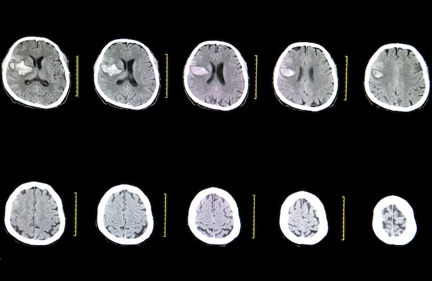 Ct brain scan of a stroke patient