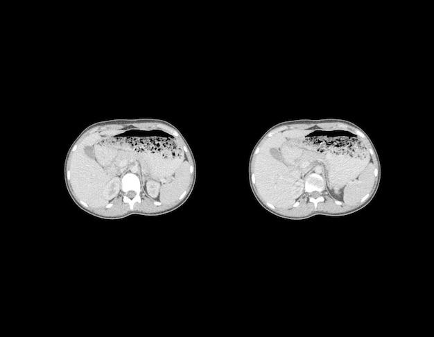 Ct 스캔 및 mri 복부 전문 이미지