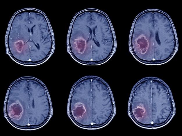 출혈성 뇌졸중 또는 허혈성 뇌졸중에 대한 ct 스캔 뇌 영상.