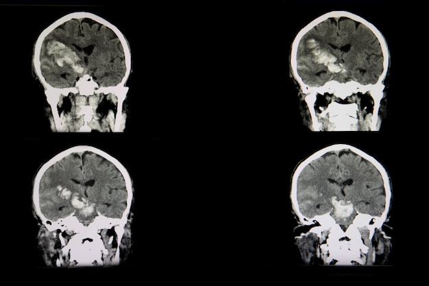 Ct scan of a brian of a patient with acute hemorrhagic stroke