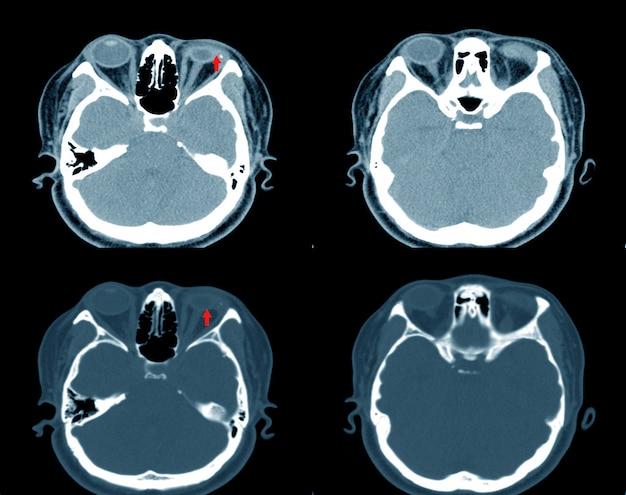 Ct-scan脳と軌道の印象