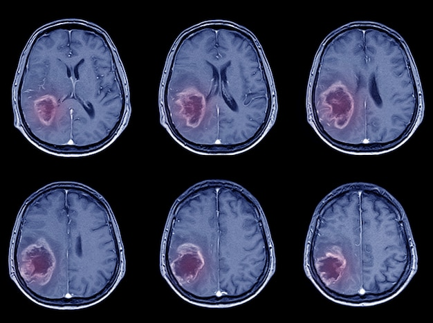 出血性脳卒中または虚血性脳卒中のctスキャン脳画像。